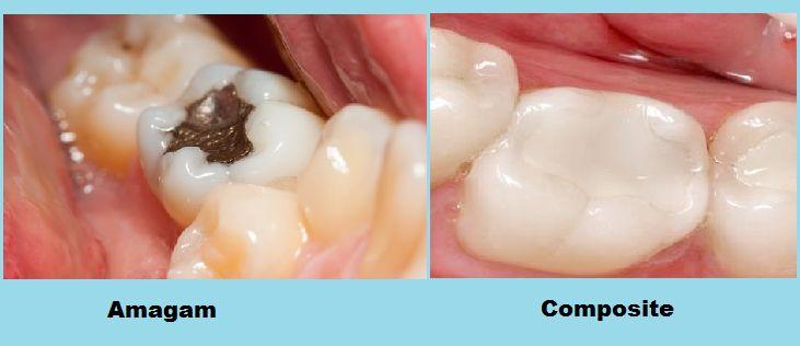 Tất tật Thông tìn từ A - Z về trám răng cửa bị mẻ bạn CẦN PHẢI BIẾT 6