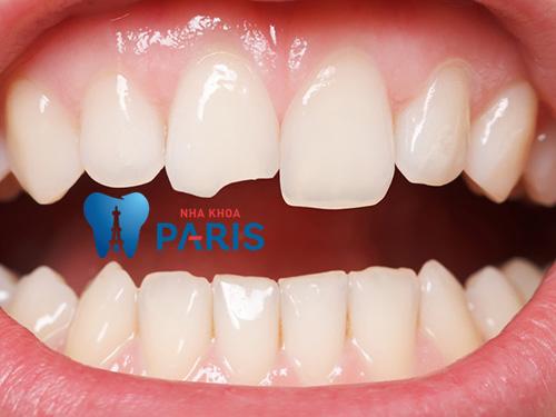 trám răng cửa bị mẻ được bao lâu