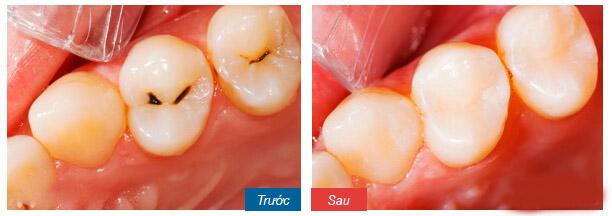 Chữa đau răng bằng lá ổi - 3 Cách thực hiện ĐƠN GIẢN ít người biết 2