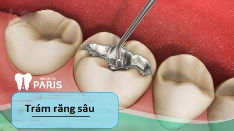 Trám răng sâu - Cách điều trị sâu răng hiệu quả
