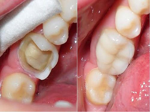 trám răng composite, trám răng bằng composite, trám răng thẩm mỹ bằng composite