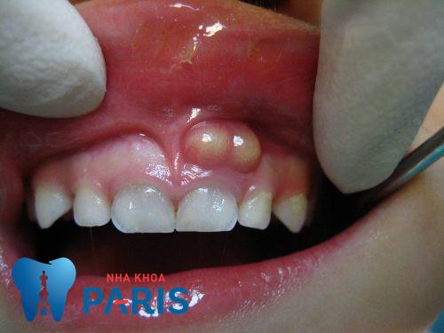 viêm tủy răng có nguy hiểm không